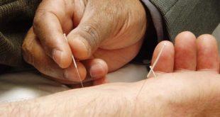 Akupunktur Wirkung-was-ist-das-vorteile