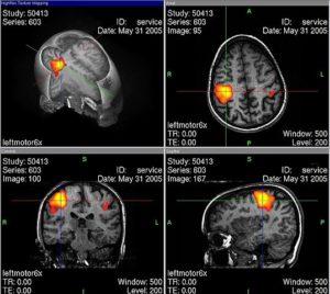 Tinnitus-Ursachen-Methoden-Tinnitus-bekämpfen-natürlich-heilen-Arten