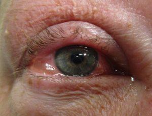 Juckende-Augen-Ursachen-Gesundheit