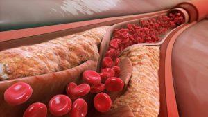 LDL-VLDL-Cholesterin-Triglyceride