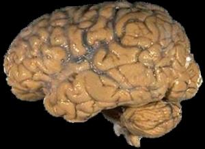 Lebensmittel-die-Gehirn-stärken-Gedächtnis-verbessern