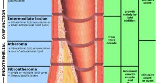 Lipoprotein-a-senken-hemmen-Atherosklerose- endotheliale-Dysfunktion-Herzattacke